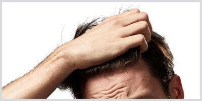 Empfindliche Und Trockene Kopfhaut Bei Männern